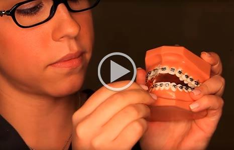 Brushing and Flossing iSmile Orthodontics Redmond WA
