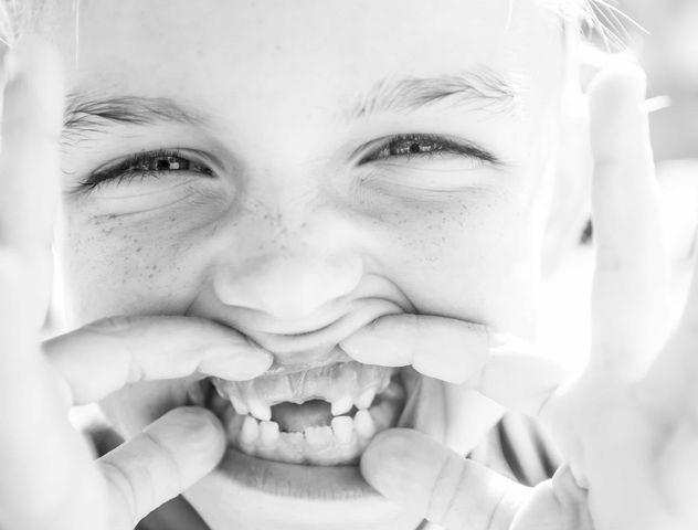 Young girl showing her teeth iSmile Orthodontics Redmond WA