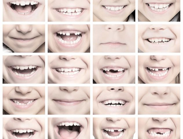 A collage of pictures having gap in teeth iSmile Orthodontics Redmond WA