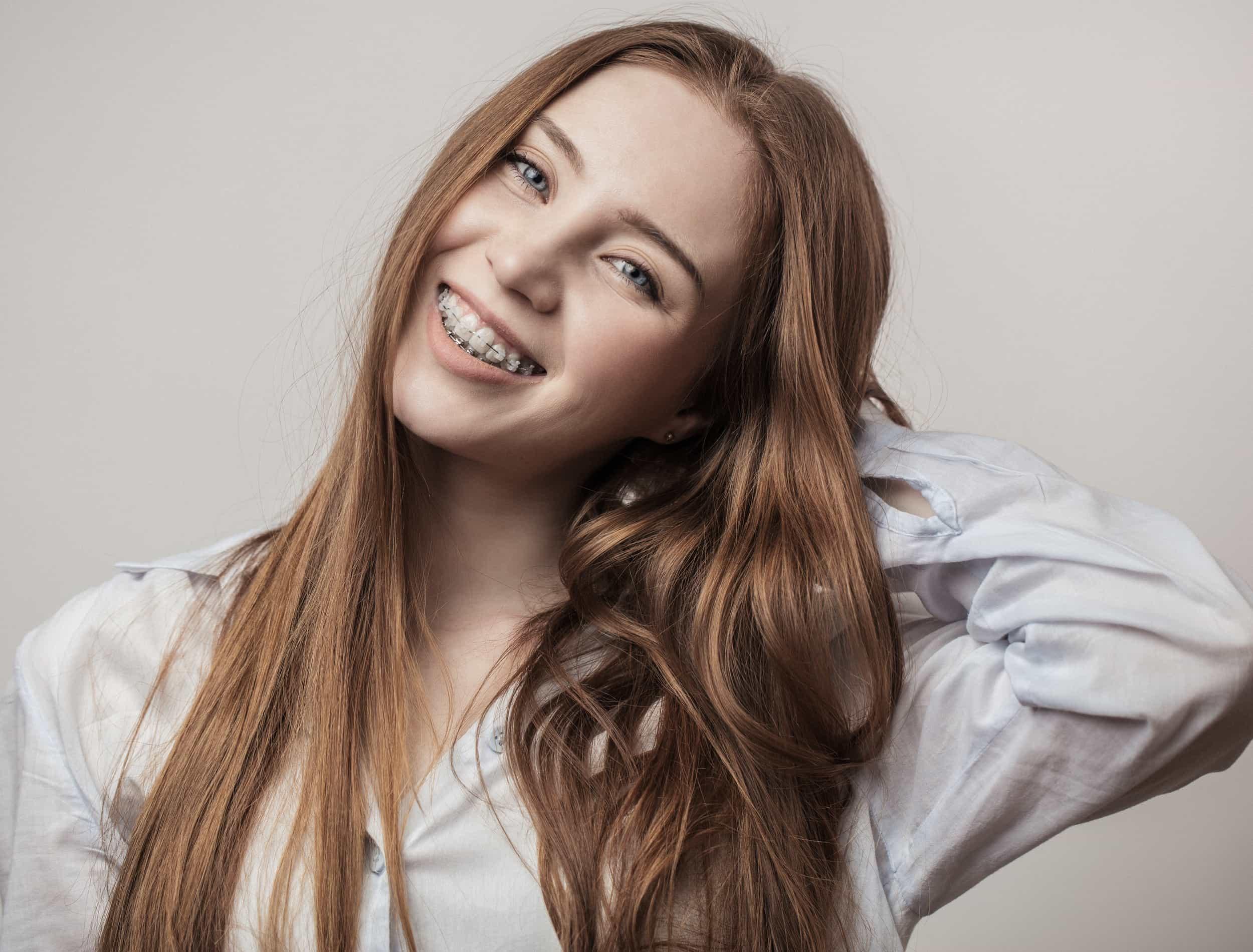 Teen smiling with braces iSmile Orthodontics Redmond WA