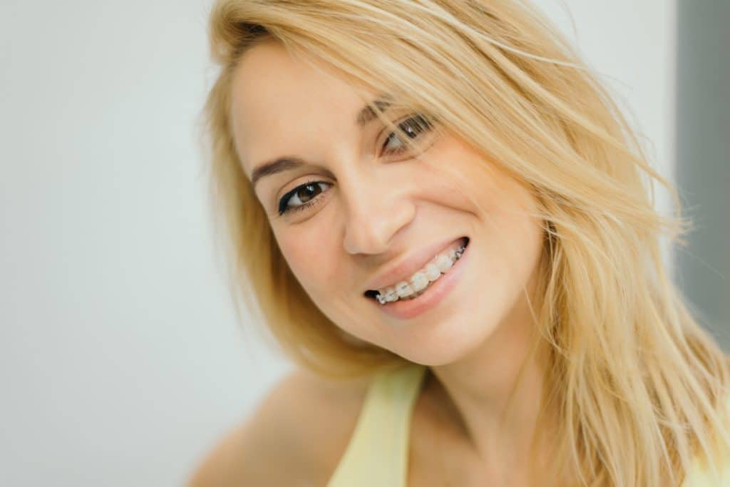 Blonde girl smiling with clear braces