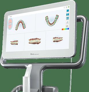 iTero iSmile Orthodontics Redmond WA