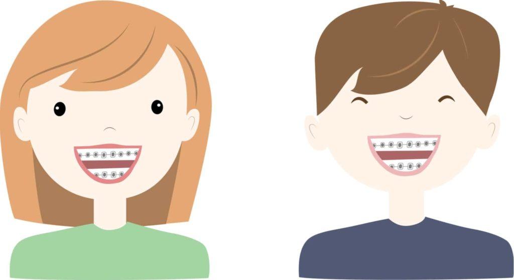 Smile Cartoon iSmile Orthodontics Redmond WA