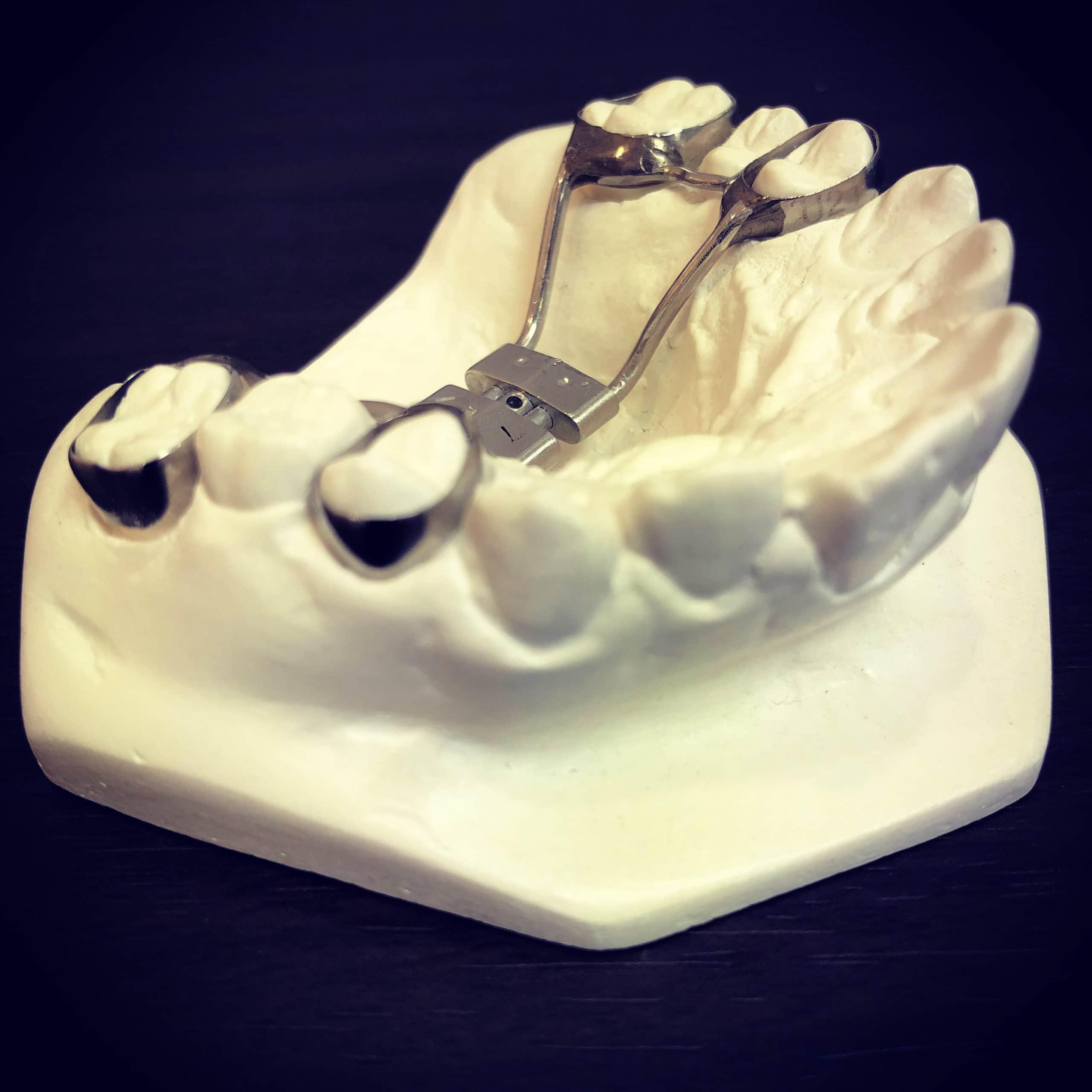 Orthodontic expander | Dr Sepi Torkan orthodontist in Redmond, Bellevue, Woodinville and Kirkland,WA