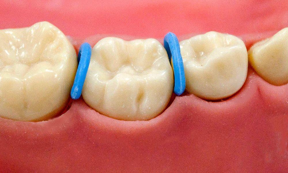 orthodontic separators